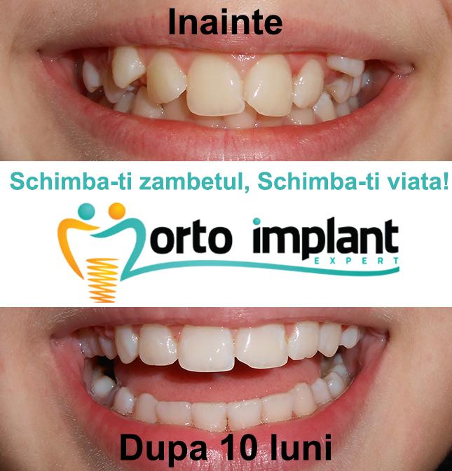 Orto Implant Expert