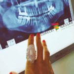 Implanturi într-o zi, hipnoză în loc de anestezii